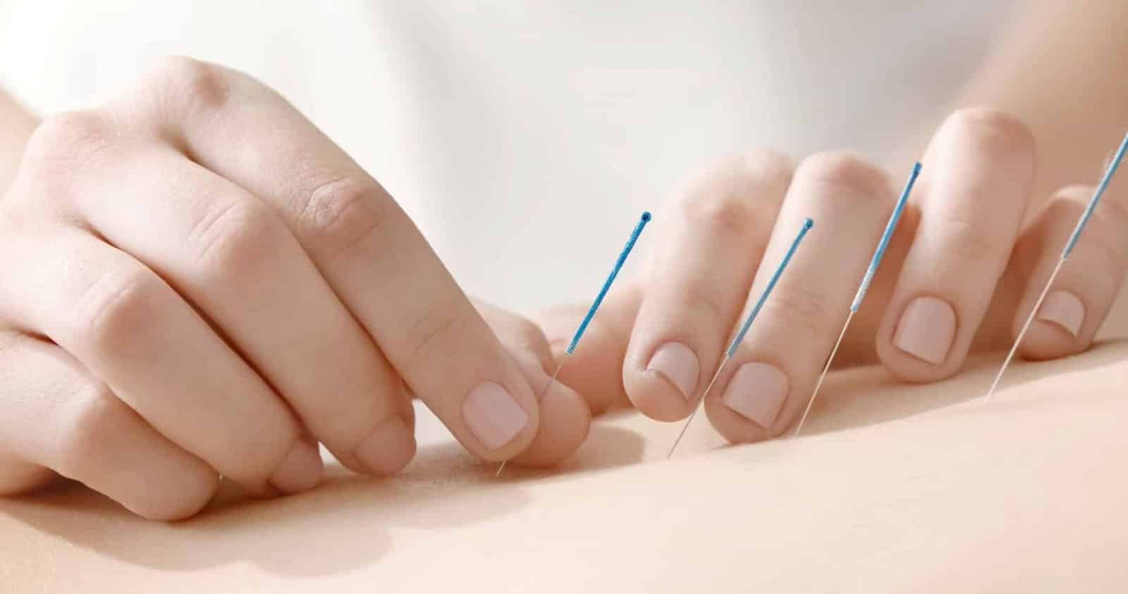 acupuncture, dry needling