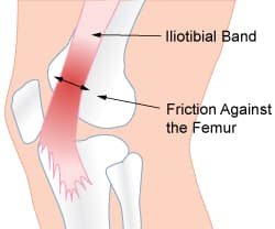 ITBFS, ITB Friction Syndrome, Illiotibial Band