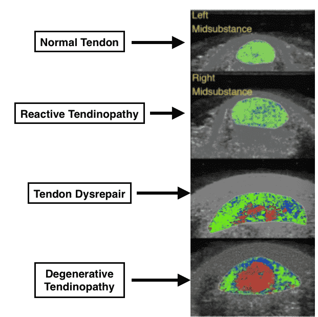tendon pathology, tendinitis, tendinopathy, tendinosis, reactive tendinopathy, degenerative tendon