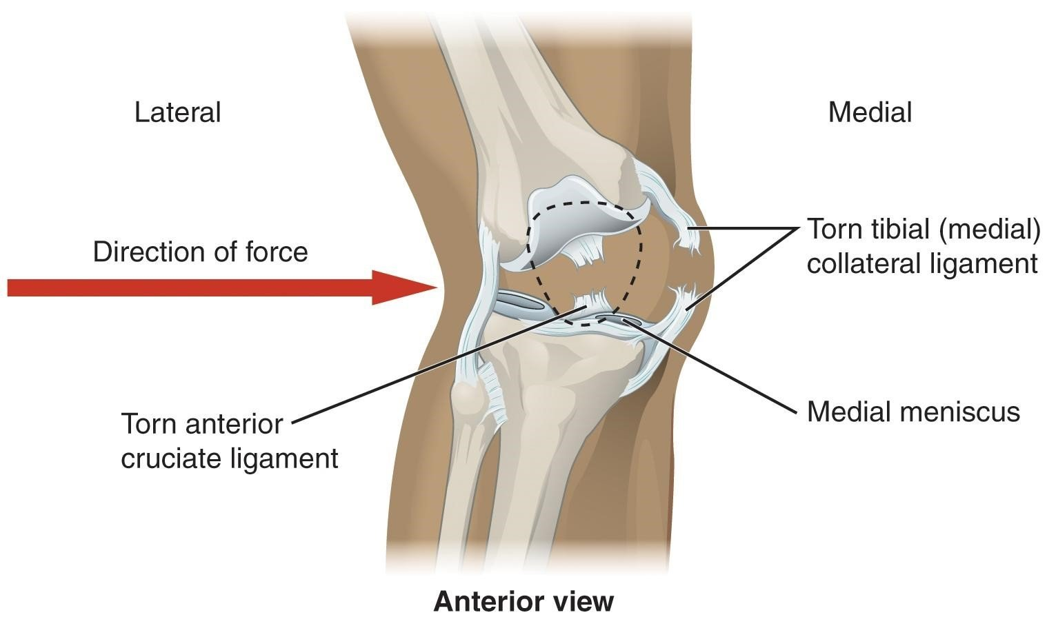 mcl injury, knee pain physiotherapy, physiotherapy, physio, physiotherapy east fremantle, physiotherapy fremantle