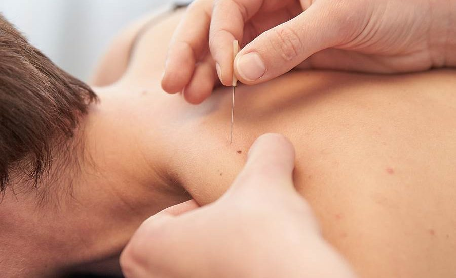 dry needling, dry needling fremantle, dry needling vs acupuncture