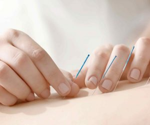 dry needling, dry needling fremantle, physiotherapy, dry needing physiotherapy, physiotherapy east fremantle, move physiotherapy