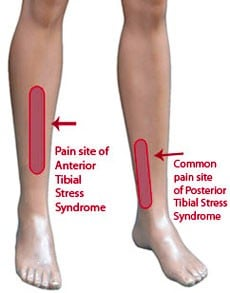 Shin Splints Location of Pain