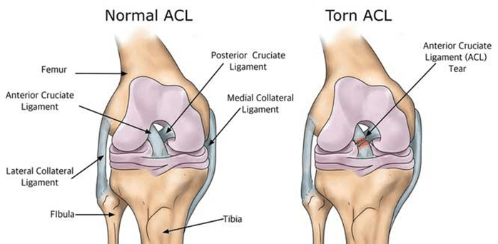 ACL Injury Physiotherapy | Move Physiotherapy Fremantle