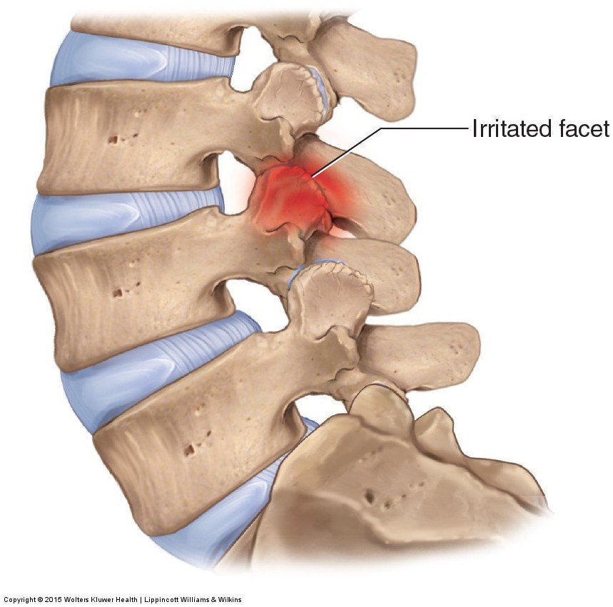 back pain physiotherapy, facet joint pain