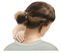 wry neck physiotherapy, move physiotherapy fremantle