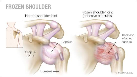 frozen shoulder, physiotherapy fremantle, physio east fremantle