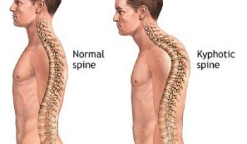Hyperkyphosis - More Than Just a Hump | Move Physiotherapy Fremantle